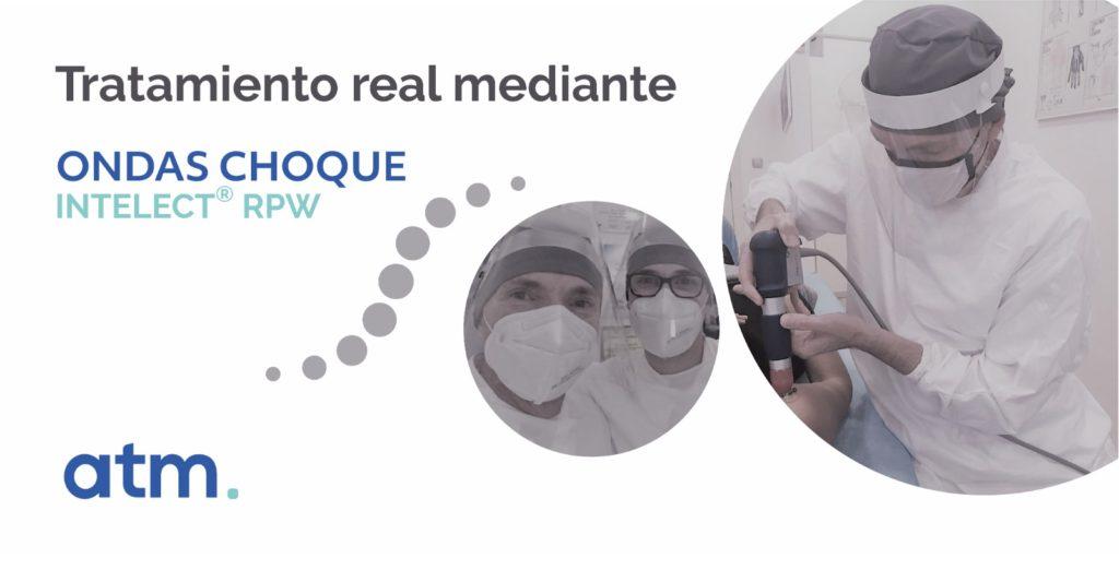 Caso de estudio en el uso de las ondas de choque de la mano de los fisioterapeutas Txema Aguirre y Joseba Agirre